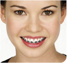 lacombe-dental-braces.jpg